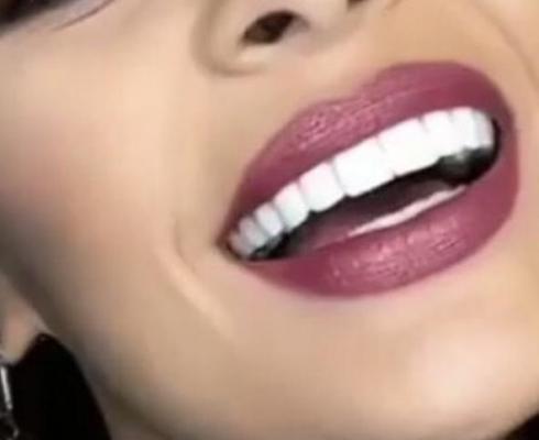 دندانپزشکی زیبایی لمینت کامپوزیت نانو سرامیکی
