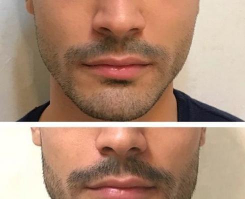زاویه سازی فک صورت چانه و تزریق ژل گونه لب بوتاکس