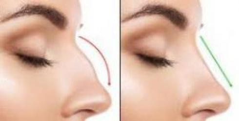 عمل بینی- جراحی زیبایی بینی | فرم دهی بینی