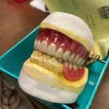 ساخت انواع دندان مصنوعی
